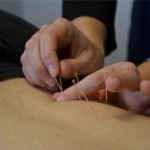 Dry Needling - Myotherapy Toorak - Eclipse Therapies